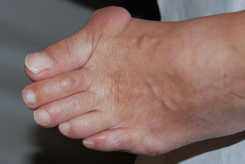 bunion on the big toe