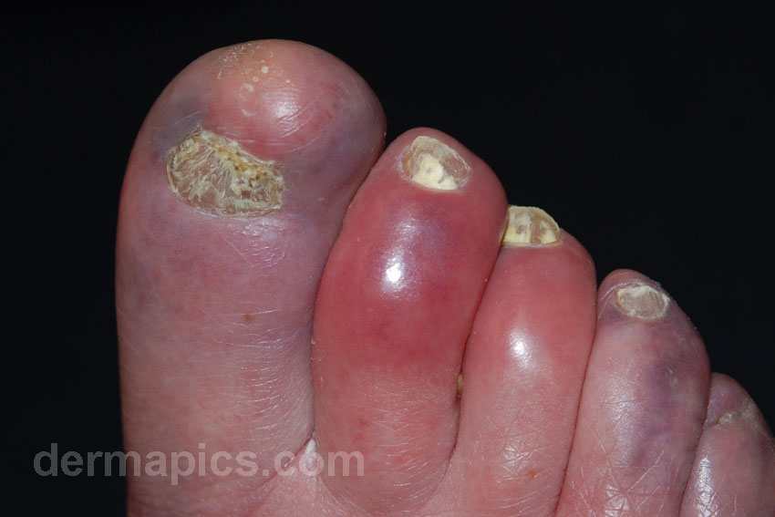 chilblains (feet, red swollen toes)