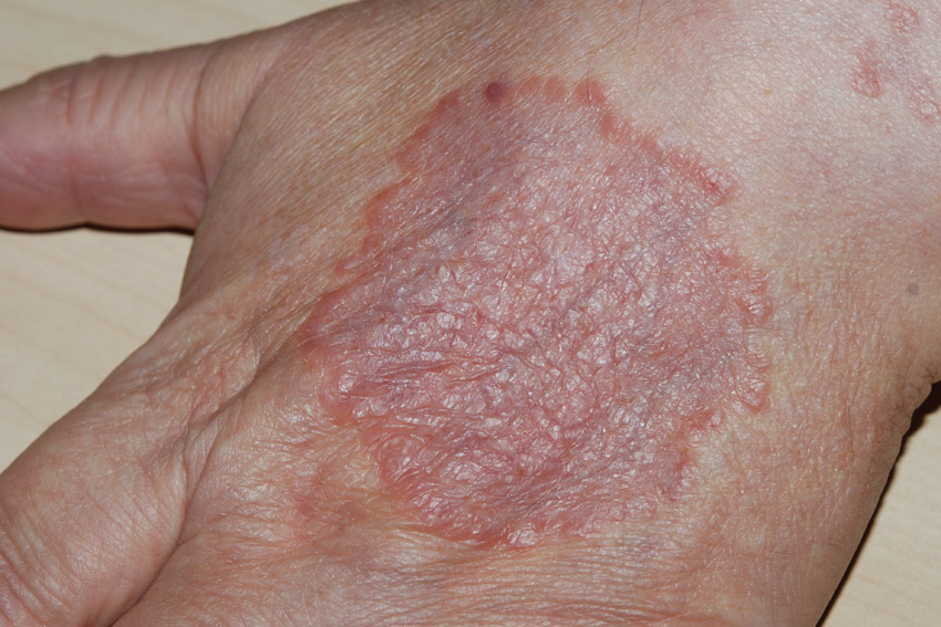 granuloma annulare on the back of the hand