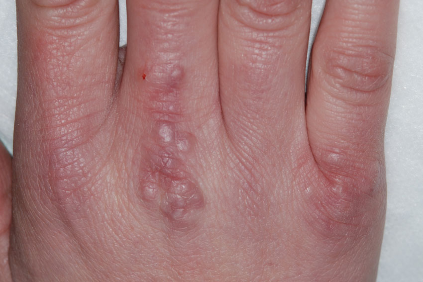 granuloma annulare looking like warts on the hand