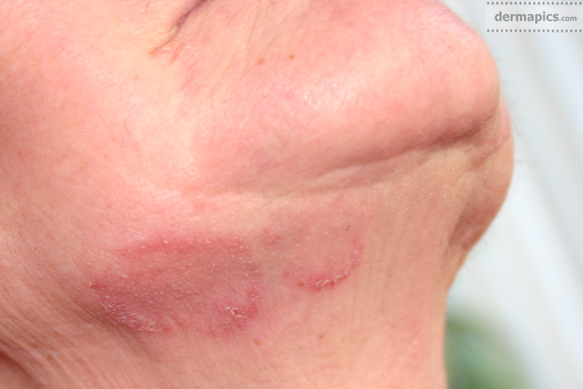 fungal infection                       (ringworm) in the face