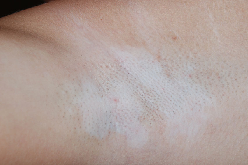 vitiligo in the arm                       pit