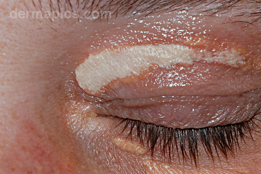 xanthelasma                       immediately after treatment with trichloroacetic                       acid solution
